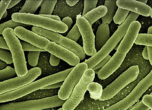 Escherichia-Coli-Koli-Bacteria-Disease-Bacteria-123081.jpg
